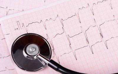 Que es y para que sirve un Electrocardiograma